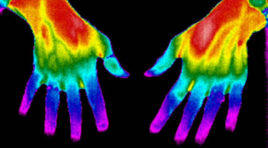 Outcome measures for systemic sclerosis-related Raynaud's phenomenon